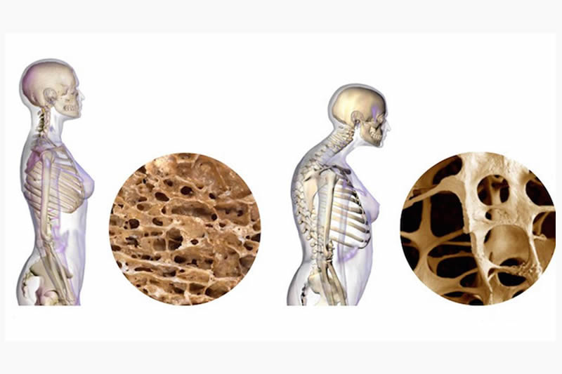 La vitamina D y el calcio ayudan a prevenir la osteoporosis
