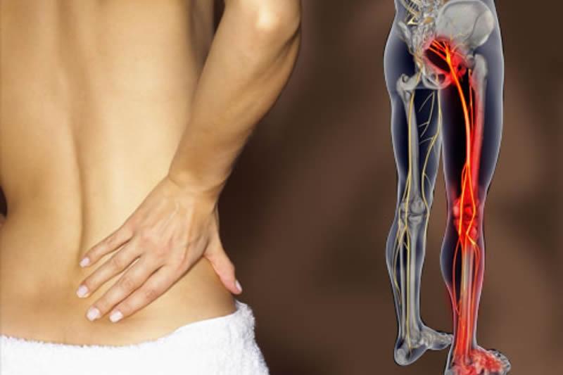 ¿Dolor en el nervio ciático? Se trata del síndrome del glúteo profundo