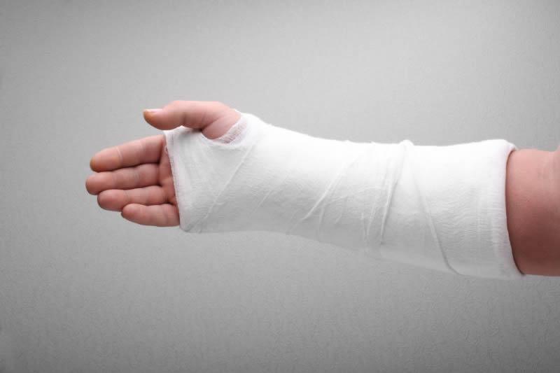 Sabes cómo se debe cuidar el yeso durante una fractura