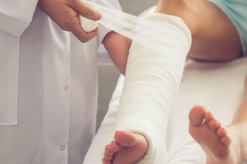 Cuidados del yeso en caso de fractura